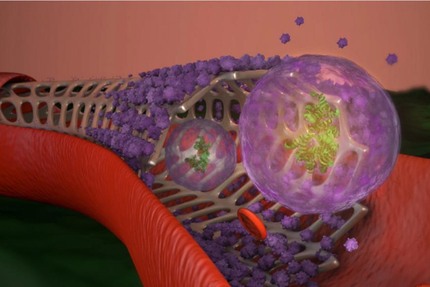 科学家开发出可以促进动脉愈合的智能支架
